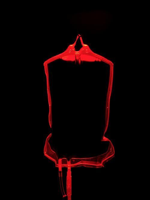 Plasma Transfusions
