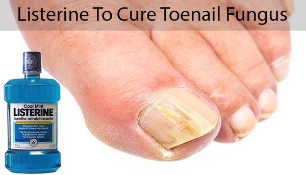 Listerine To Cure Toenail Fungus